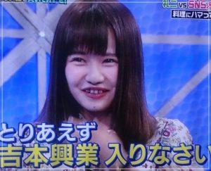 佐藤ノアは歯並び矯正で顔変わった