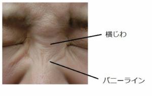 有村架純に鼻筋プロテーゼの整形疑惑