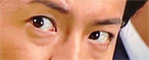 【画像】キムタクの目が整形で変わった