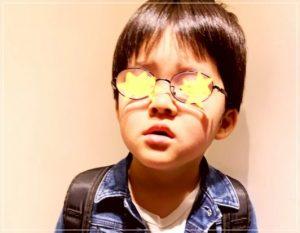 宮崎謙介と金子恵美の子供の障害=ダウン症