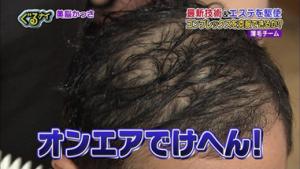矢部浩之の髪の毛のハゲ(円形脱毛)の原因