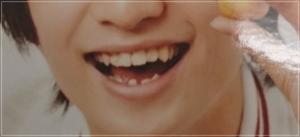 浮所飛貴の歯並びが歯列矯正できれいに